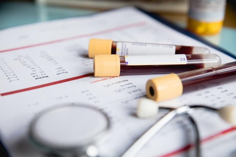 Kan Bağışı Yapmak Hayat Kalitesini Yükseltiyor